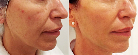 PDO Thread Lift - Aesthetic Rejuvenation TherapiesAesthetic