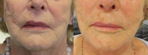 art-aesthetics-pdo-thread-lift-before-after5