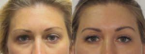 art-aesthetics-pdo-thread-lift-before-after6
