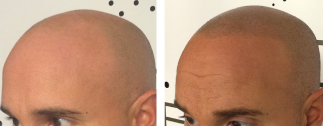 pc-scalp-tattooing-before-after-2-w640h250