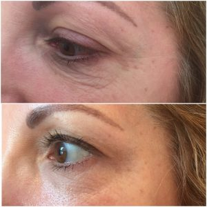 Eyelid Tightening Amp Skin Rejuvenation By Soft Surgery