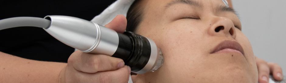 art-site-fractional-rf-skin-treatment