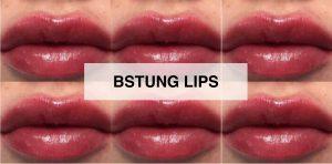 bstung-lips